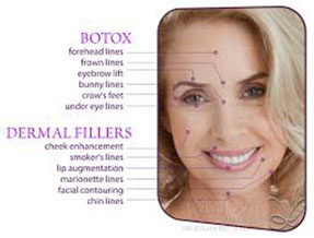Botox - Smiles by Design Chicago